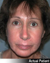 Brow Lift Patient